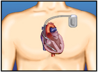 ICD implanted under the skin with the lead (wire) in the heart.